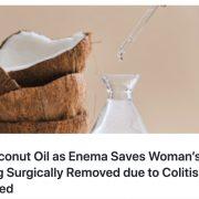 ココナッツオイルの浣腸で大腸炎が改善!?